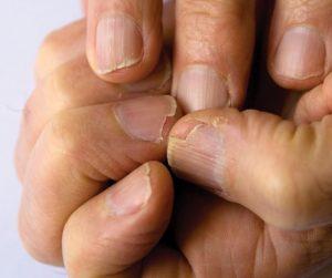La mejor lista de endurecer las uñas fragiles y escamadas para comprar Online – Los preferidos por los clientes