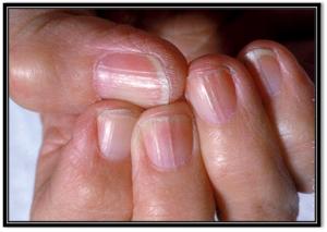 Selección de uñas con estrias y quebradizas para comprar on-line – Los preferidos
