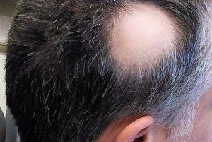 Opiniones de causas de la caida del pelo para comprar On-line – Los mejores