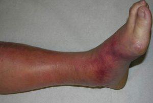 La mejor selección de mala circulacion piernas para comprar on-line