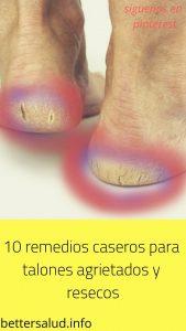 Catálogo para comprar por Internet crema para pies agrietados casera – Favoritos por los clientes