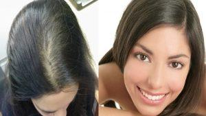 Ya puedes comprar en Internet los caida de pelo mujeres jovenes
