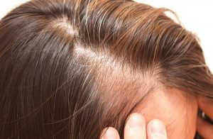Catálogo de caida de pelo despues de dar a luz para comprar online