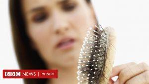 La mejor recopilación de causas de la caida de pelo para comprar – Los favoritos