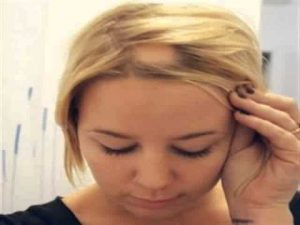 caida masiva de pelo disponibles para comprar online