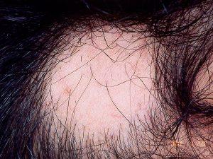 El mejor listado de caida de pelo por infeccion para comprar On-line – Los Treinta más solicitado
