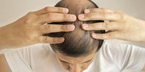 El mejor listado de productos para caida de pelo para comprar online – Los Treinta más vendidos