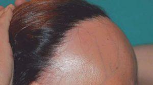 El mejor listado de picor en la cabeza y caida de pelo para comprar en Internet – El Top Treinta